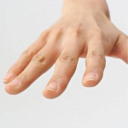 突き指14