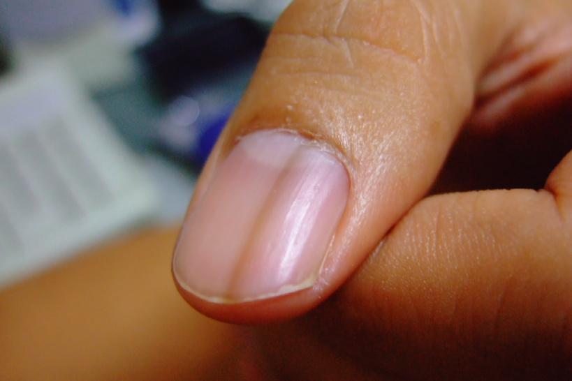 縦 親指 線 爪