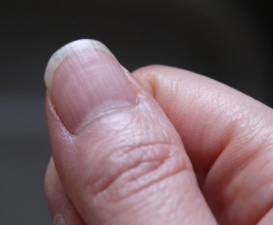 黒い 線 縦 に 爪