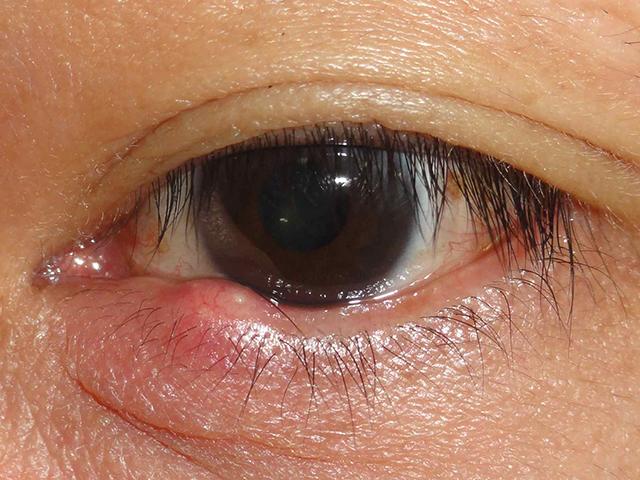 涙 袋 腫れ 片目 痛い 涙袋が腫れてかゆみや痛みがでる原因はものもらい?