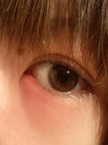 涙 袋 腫れ 片目 痛い 目の下の涙袋が腫れる7つの原因!病気の可能性と対処法をチェック!